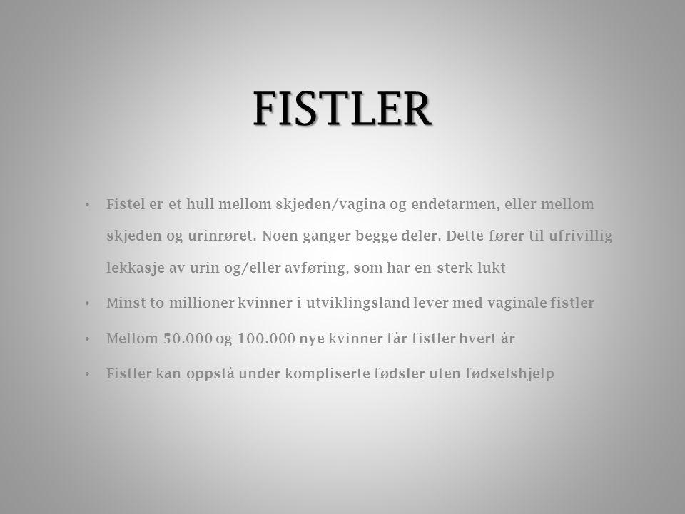 FISTLER