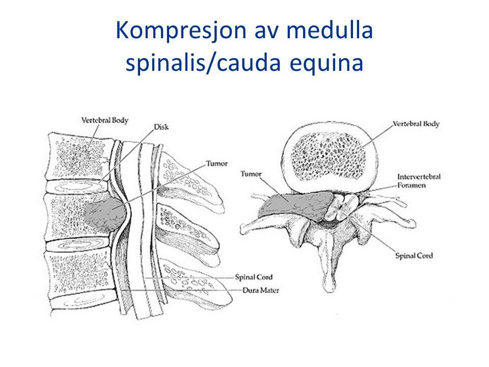 Kompresjon av medulla spinalis/cauda equina