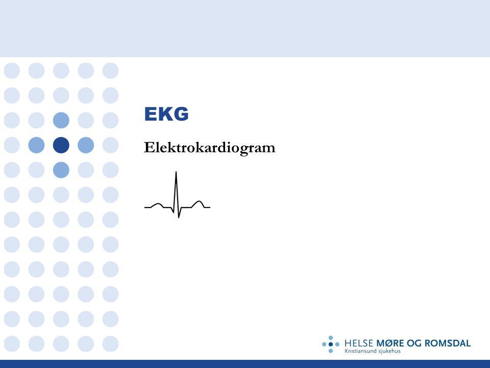 EKG Elektrokardiogram
