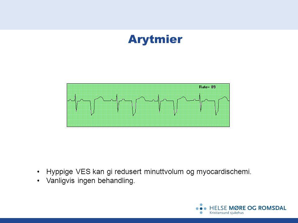 Arytmier Hyppige VES kan gi redusert minuttvolum og myocardischemi.