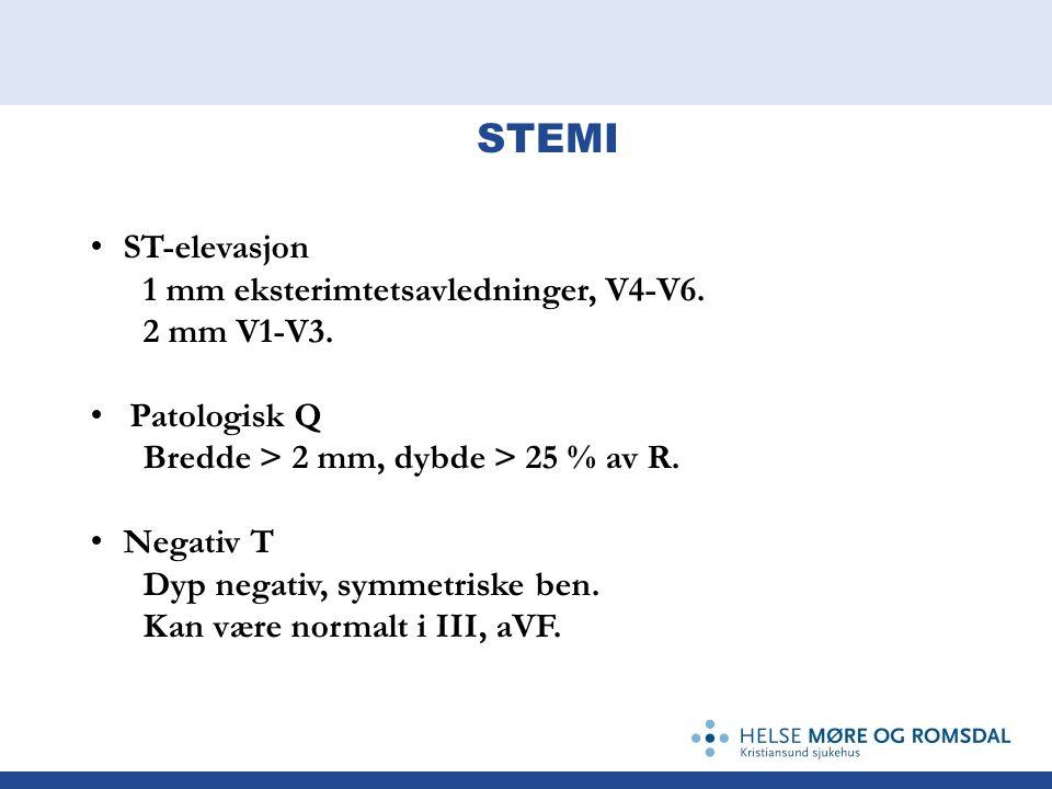 STEMI ST-elevasjon 1 mm eksterimtetsavledninger, V4-V6. 2 mm V1-V3.
