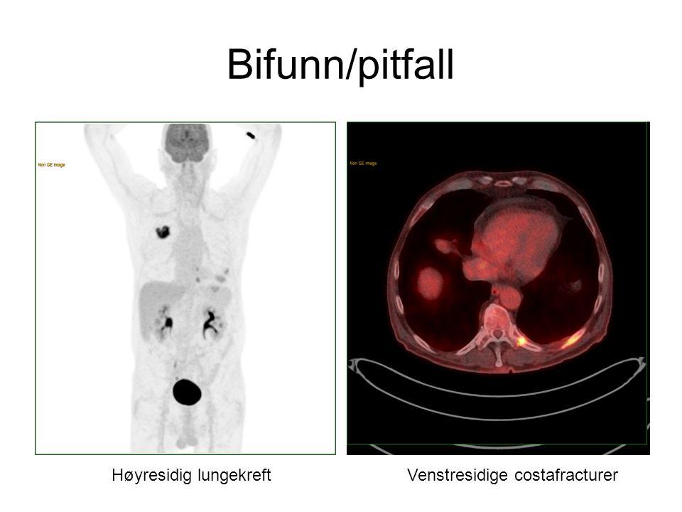 Bifunn/pitfall Høyresidig lungekreft Venstresidige costafracturer