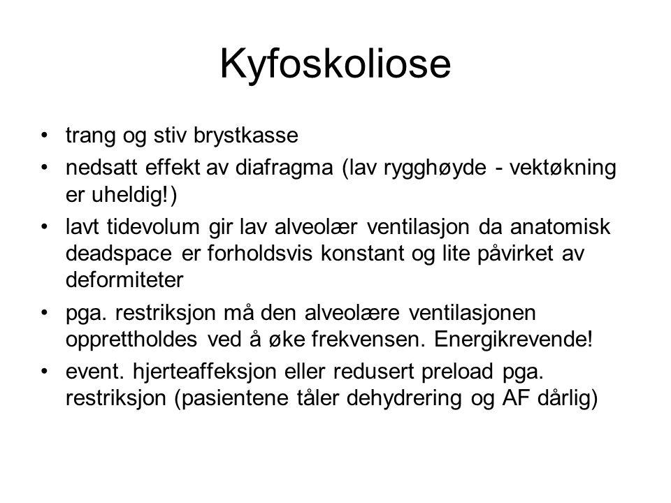 Kyfoskoliose trang og stiv brystkasse