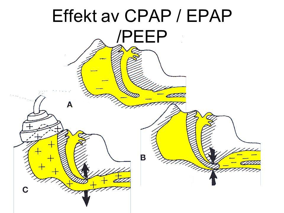 Effekt av CPAP / EPAP /PEEP