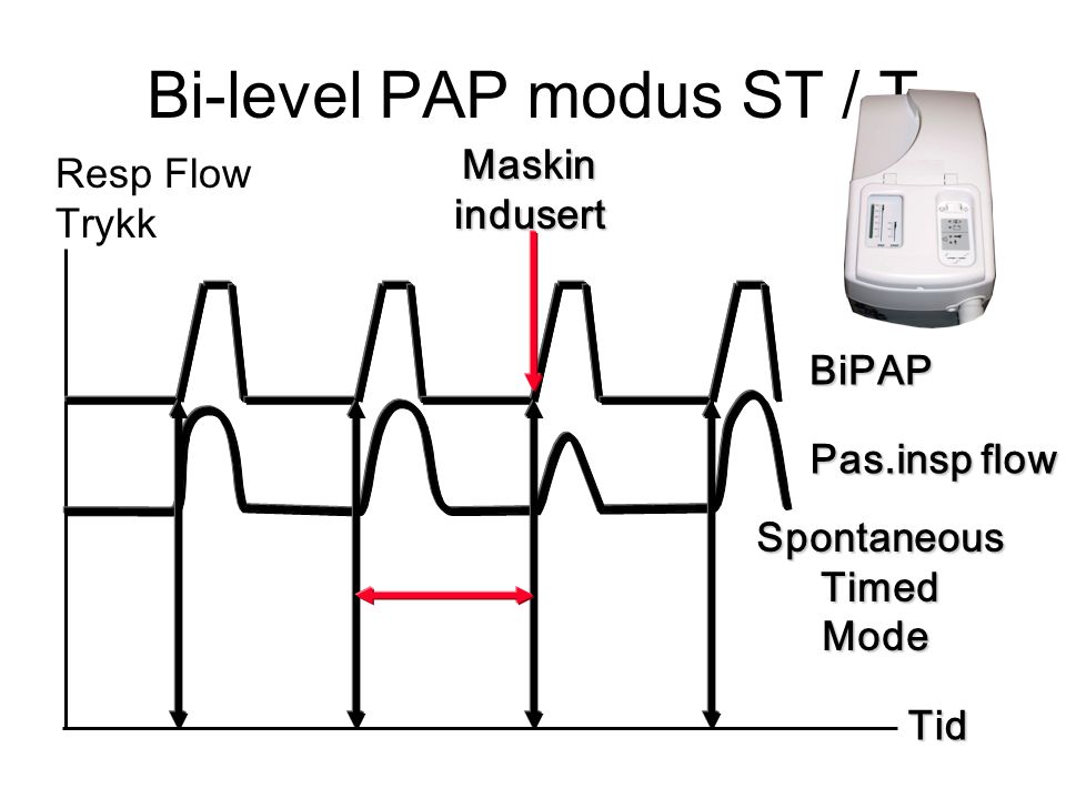Bi-level PAP modus ST / T