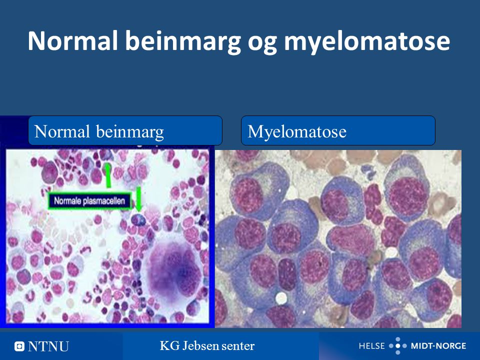 Normal beinmarg og myelomatose