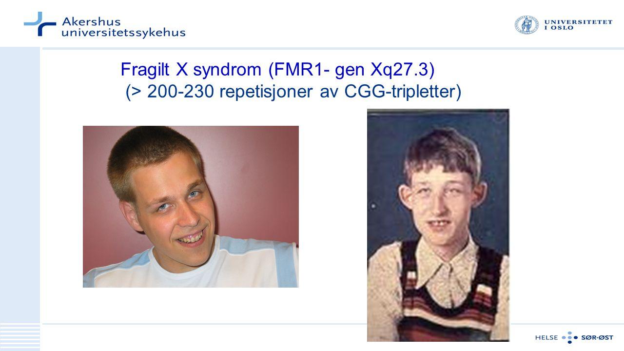 Fragilt X syndrom (FMR1- gen Xq27