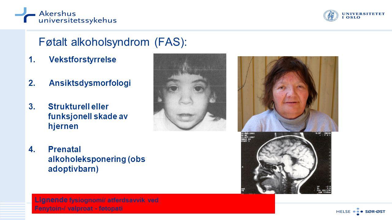 Føtalt alkoholsyndrom (FAS):