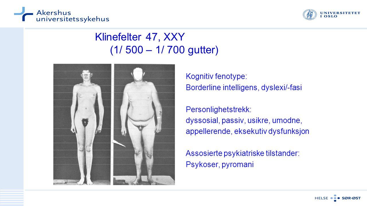 Klinefelter 47, XXY (1/ 500 – 1/ 700 gutter)