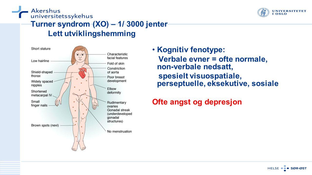 Turner syndrom (XO) – 1/ 3000 jenter Lett utviklingshemming