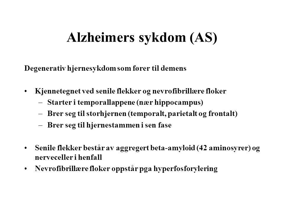 Alzheimers sykdom (AS)