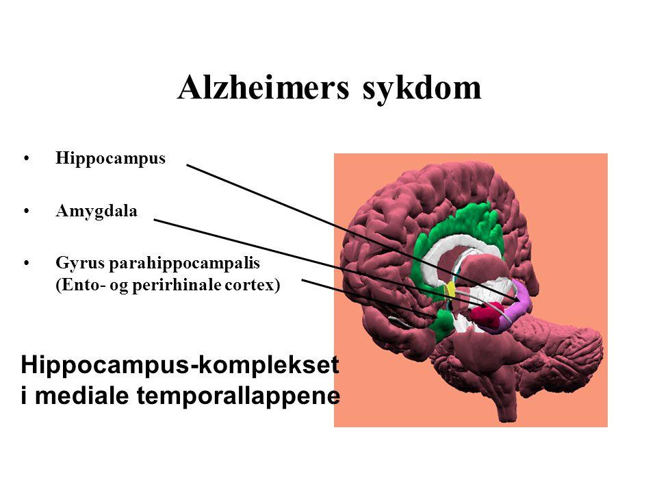 Alzheimers sykdom Hippocampus-komplekset i mediale temporallappene