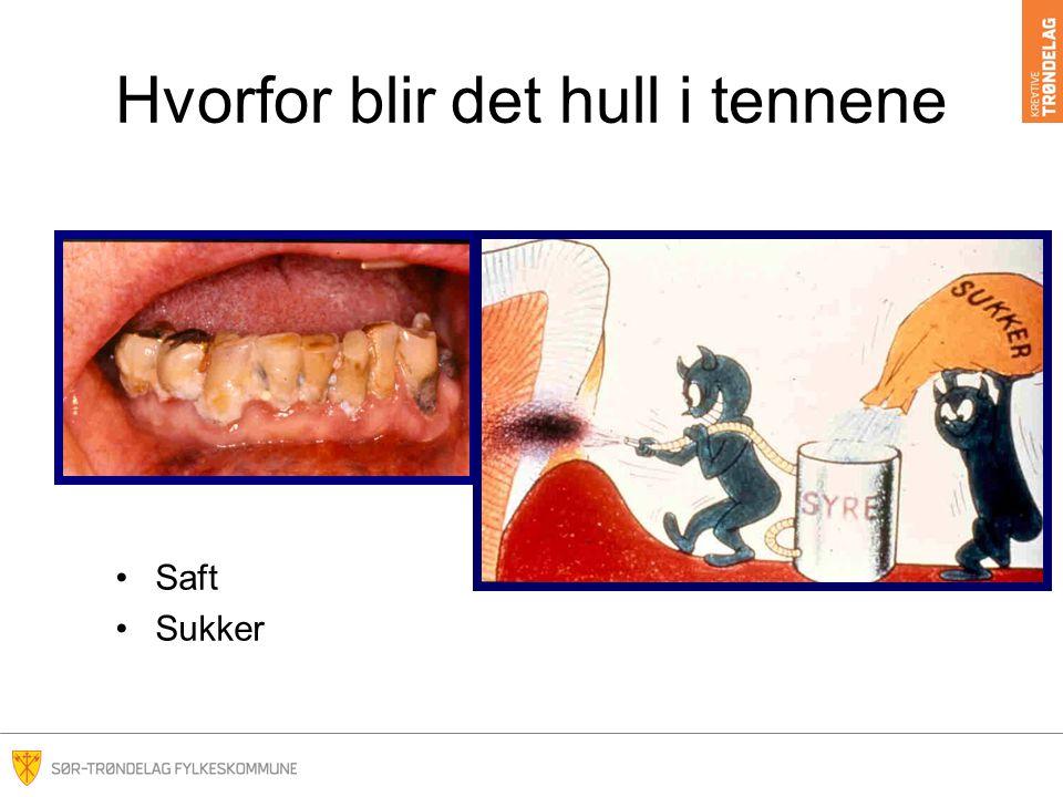 Hvorfor blir det hull i tennene