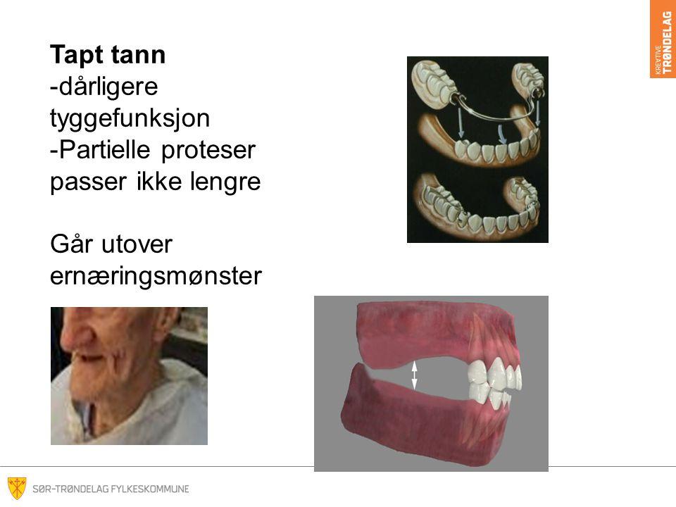 Tapt tann dårligere tyggefunksjon Partielle proteser passer ikke lengre Går utover ernæringsmønster