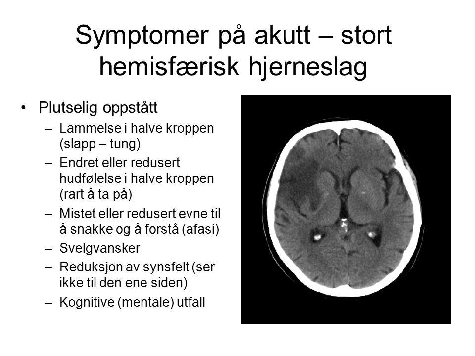 Symptomer på akutt – stort hemisfærisk hjerneslag