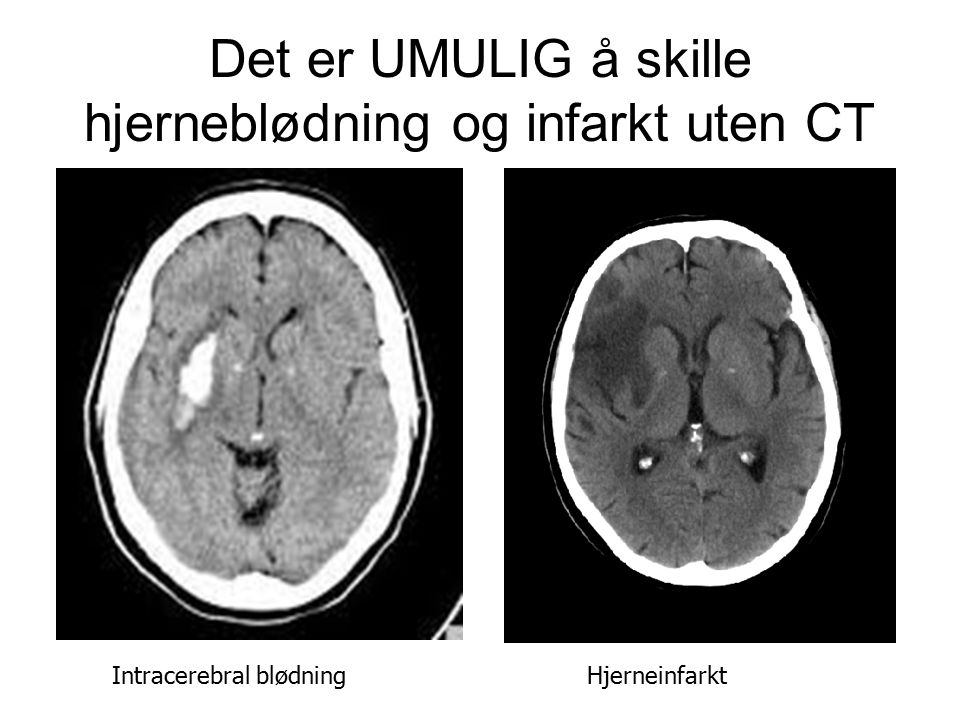Det er UMULIG å skille hjerneblødning og infarkt uten CT