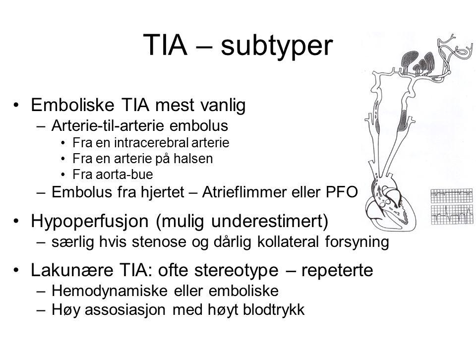 TIA – subtyper Emboliske TIA mest vanlig