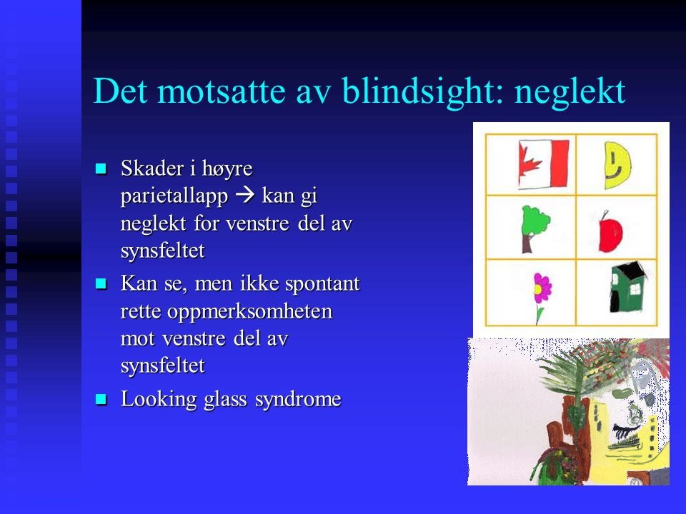 Det motsatte av blindsight: neglekt