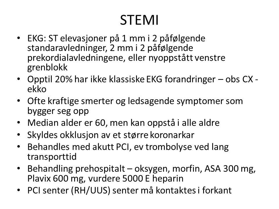 STEMI EKG: ST elevasjoner på 1 mm i 2 påfølgende standaravledninger, 2 mm i 2 påfølgende prekordialavledningene, eller nyoppstått venstre grenblokk.