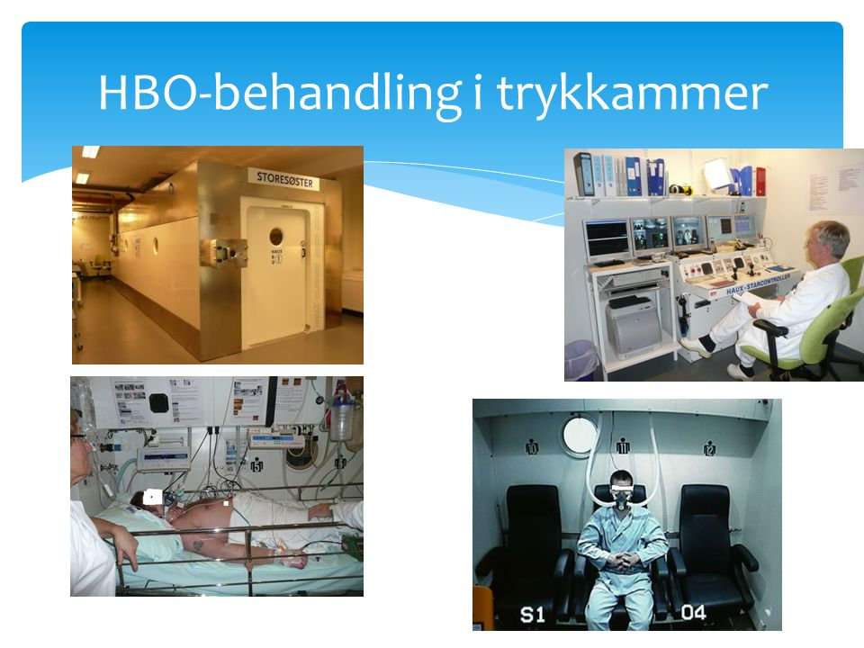 HBO-behandling i trykkammer