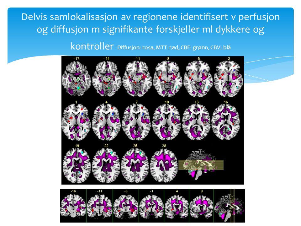 Delvis samlokalisasjon av regionene identifisert v perfusjon og diffusjon m signifikante forskjeller ml dykkere og kontroller Diffusjon: rosa, MTT: rød, CBF: grønn, CBV: blå