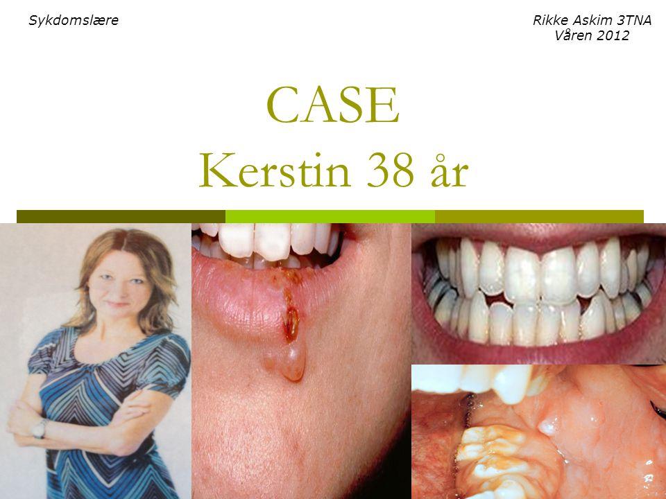Sykdomslære Rikke Askim 3TNA Våren 2012 CASE Kerstin 38 år