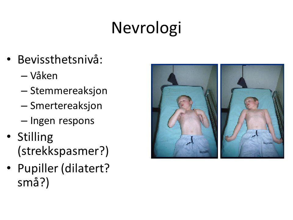 Nevrologi Bevissthetsnivå: Stilling (strekkspasmer )