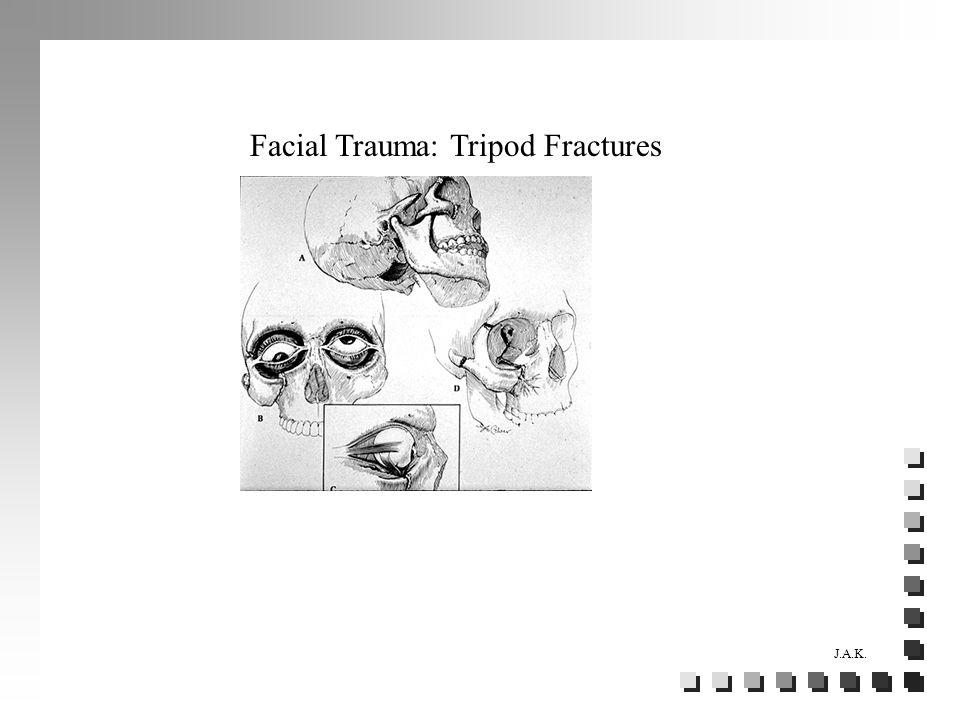 Facial Trauma: Tripod Fractures