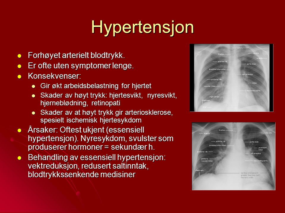 Hypertensjon Forhøyet arterielt blodtrykk.
