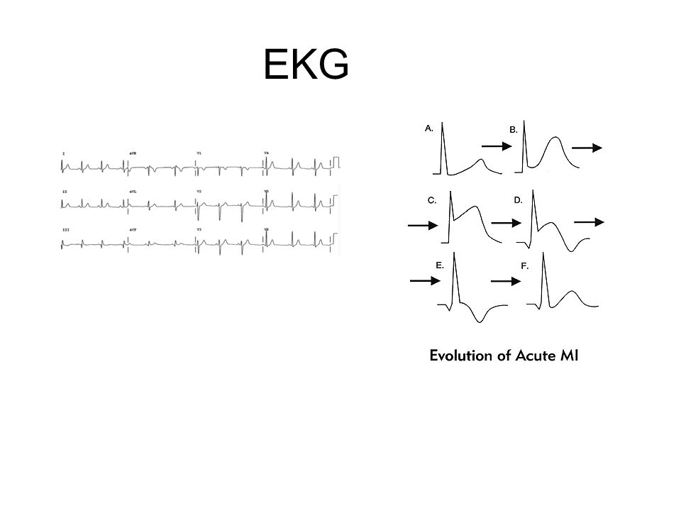 EKG http://sprojects.mmi.mcgill.ca/heart/egcyhome.html Hjerteprøve