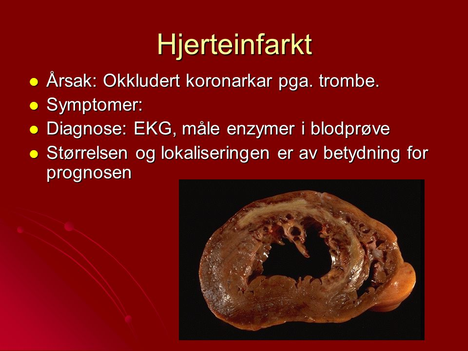 Hjerteinfarkt Årsak: Okkludert koronarkar pga. trombe. Symptomer: