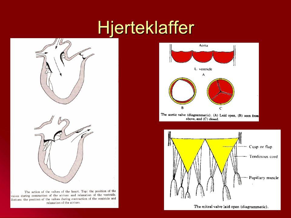 Hjerteklaffer Seilklaffer og semilunarklaffer (halvmåne)