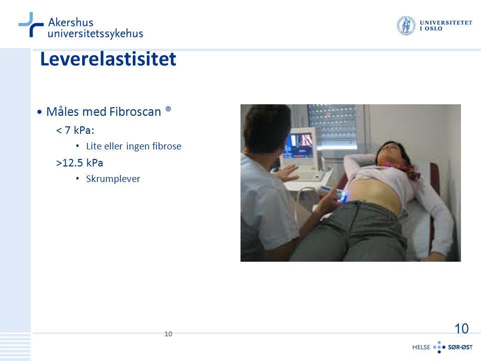 Leverelastisitet Måles med Fibroscan ® 10 < 7 kPa: >12.5 kPa