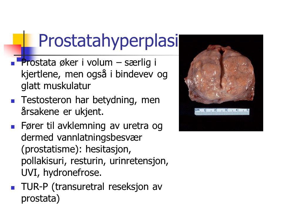 Prostatahyperplasi Prostata øker i volum – særlig i kjertlene, men også i bindevev og glatt muskulatur.