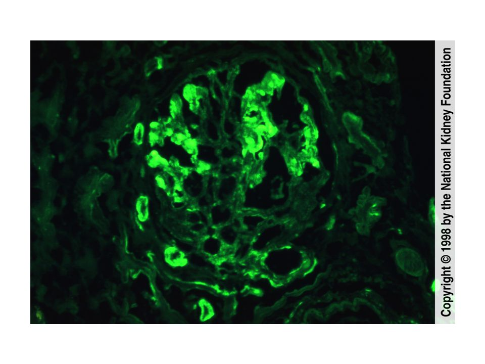 The garland pattern of immune complexes due to large subepithelial deposits in acute postinfectious glomerulonephritis is shown (immunofluorescence with anti-IgG; original magnification x400).