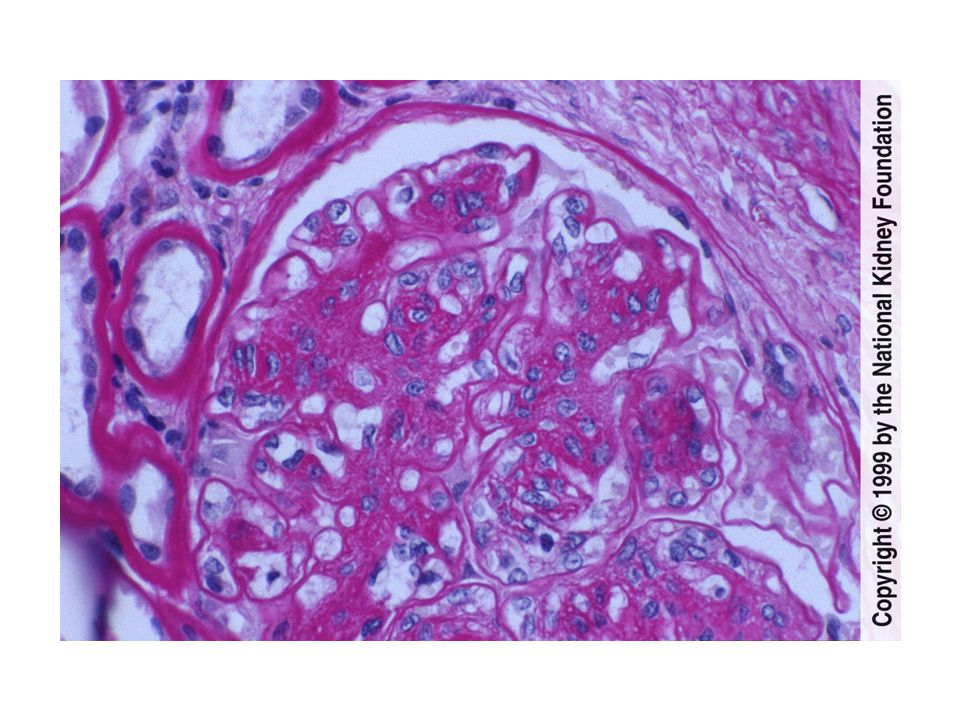 There is diffuse mesangial matrix expansion and increased mesangial hypercellularity and prominent glomerular basement membranes in diabetic nephropathy, as shown here.