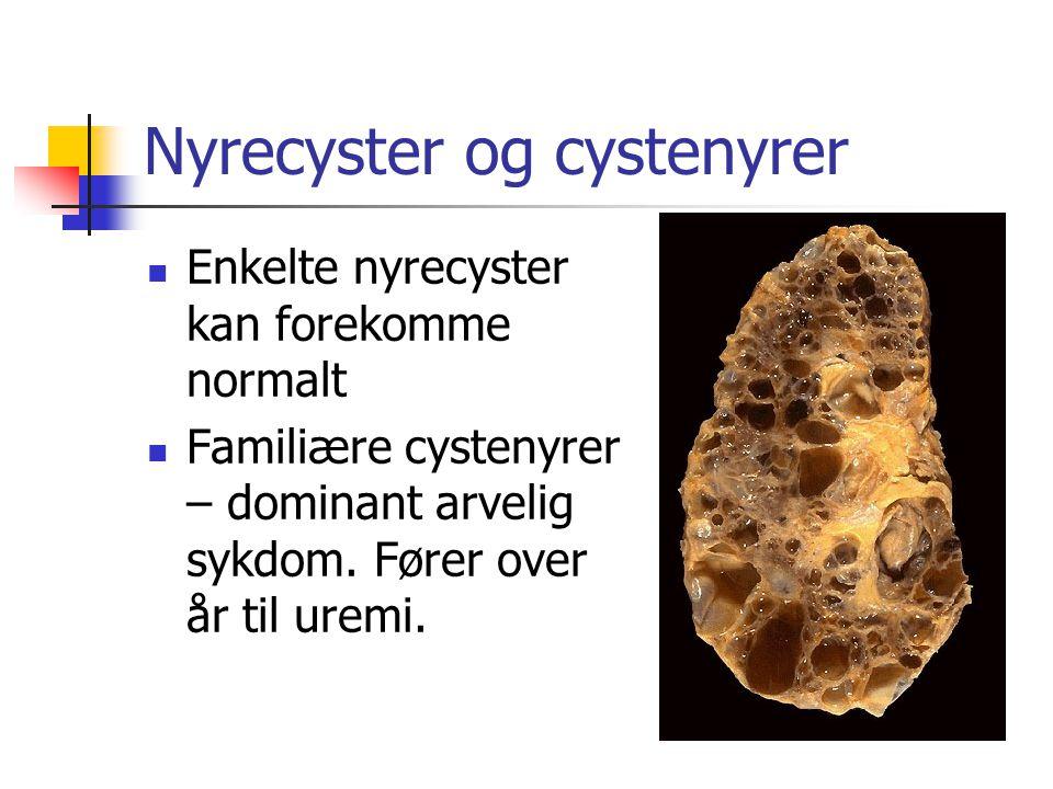 Nyrecyster og cystenyrer