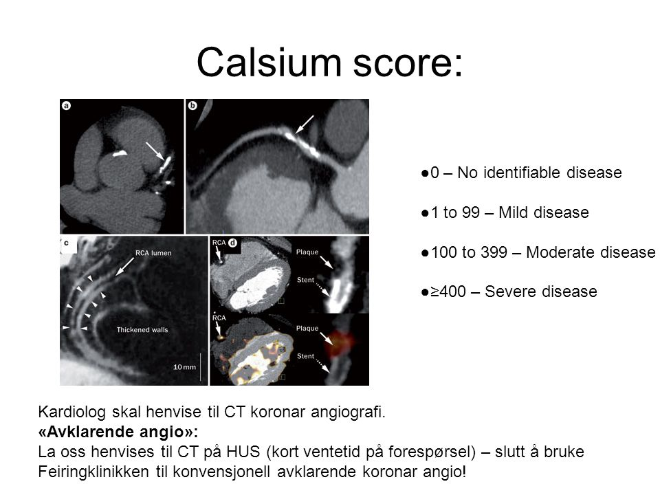 Calsium score: ●0 – No identifiable disease ●1 to 99 – Mild disease