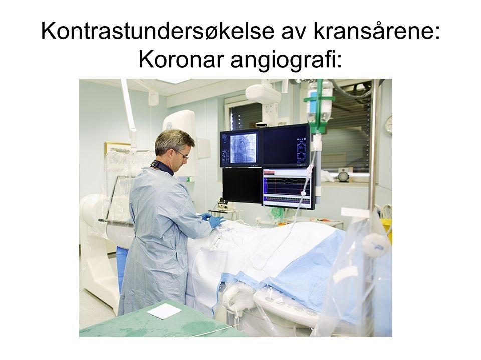 Kontrastundersøkelse av kransårene: Koronar angiografi: