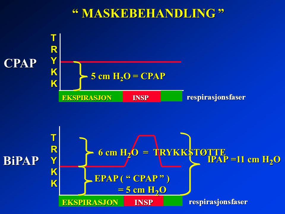 MASKEBEHANDLING CPAP BiPAP TRYKK 5 cm H2O = CPAP TRYKK