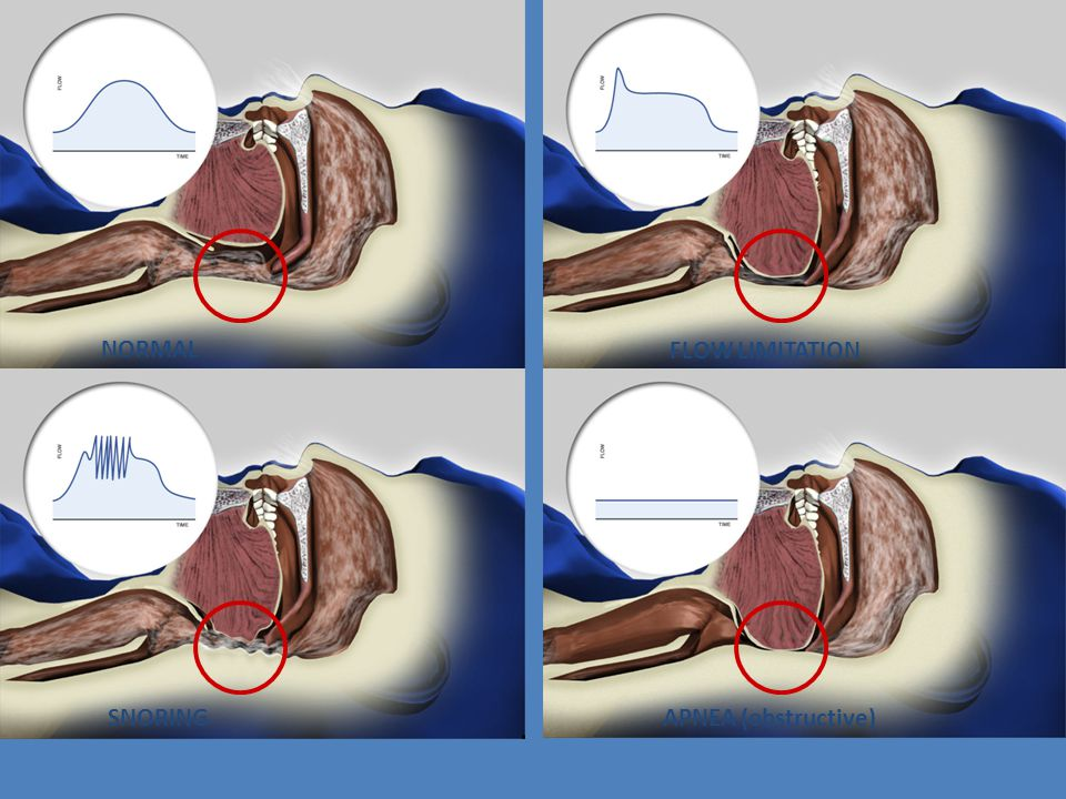 NORMAL FLOW LIMITATION SNORING APNEA (obstructive)