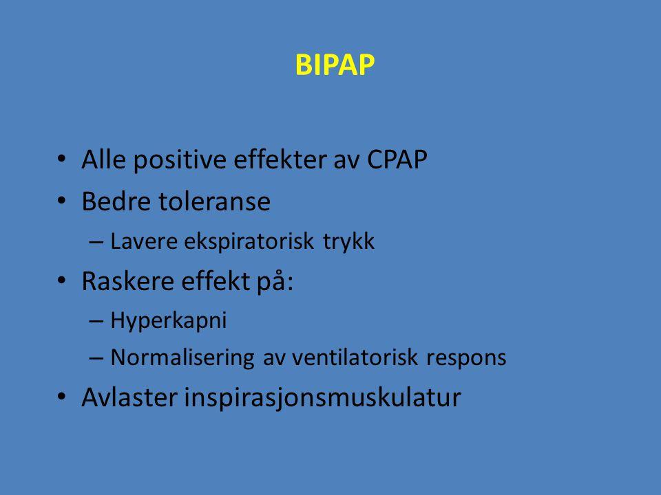 BIPAP Alle positive effekter av CPAP Bedre toleranse