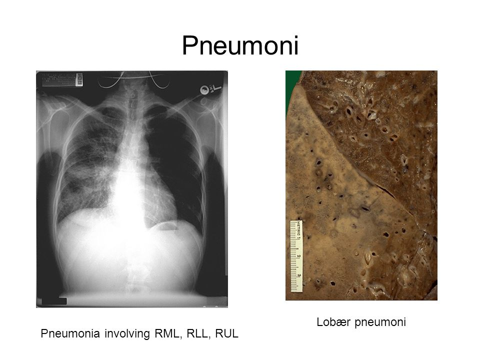 Pneumoni Lobær pneumoni Pneumonia involving RML, RLL, RUL