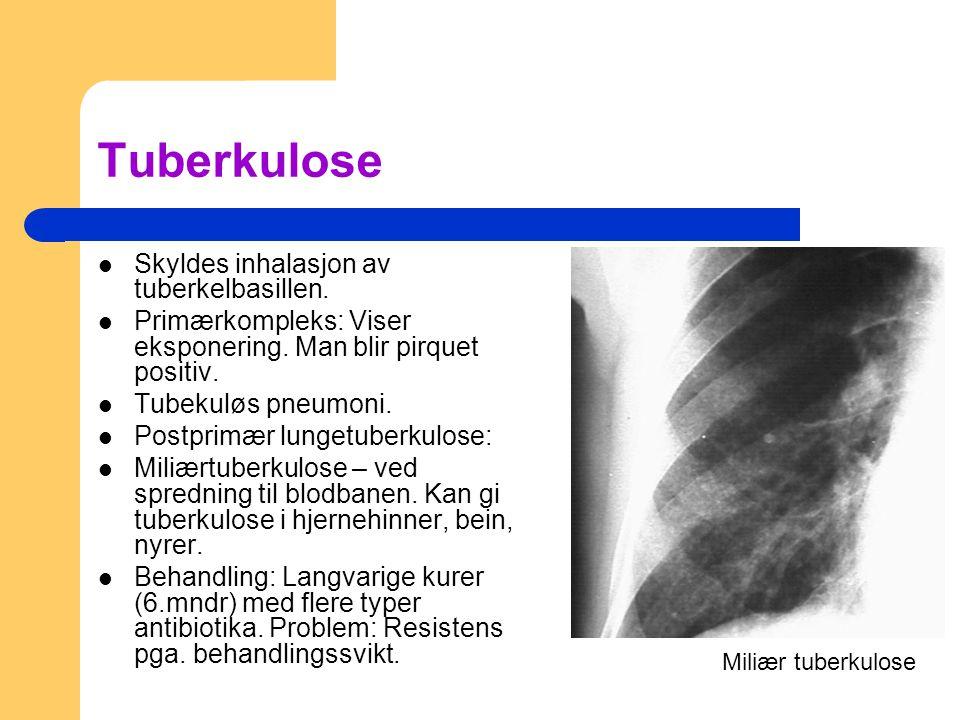 Tuberkulose Skyldes inhalasjon av tuberkelbasillen.