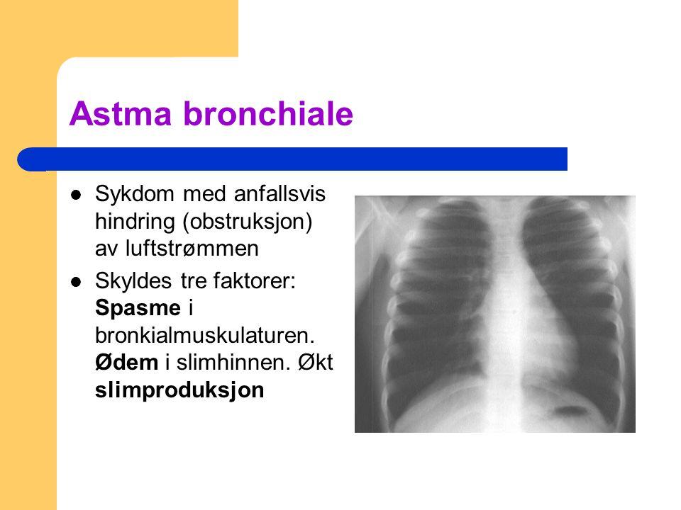 Astma bronchiale Sykdom med anfallsvis hindring (obstruksjon) av luftstrømmen.