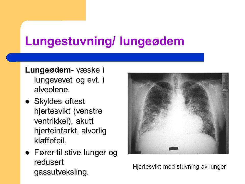 Lungestuvning/ lungeødem