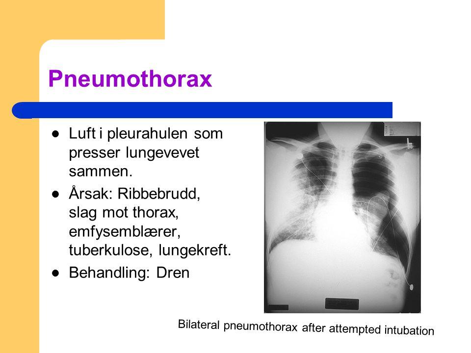 Pneumothorax Luft i pleurahulen som presser lungevevet sammen.