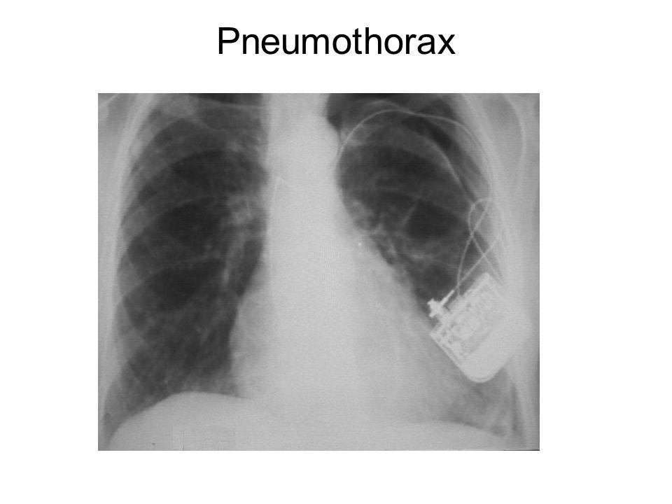 Pneumothorax Etter innsetting av pacemaker wire
