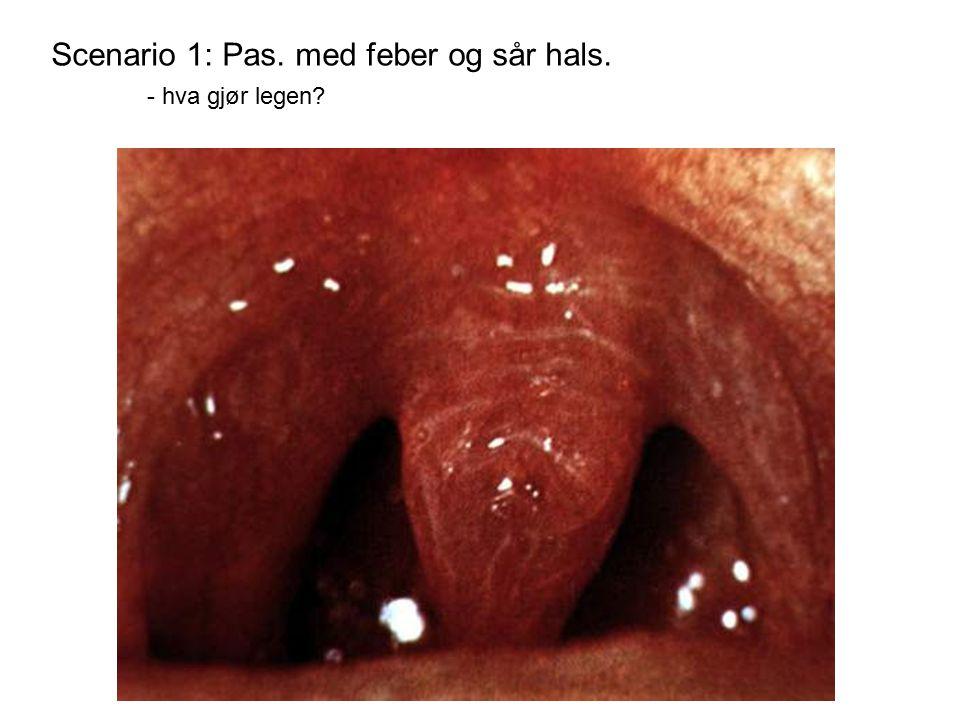 Scenario 1: Pas. med feber og sår hals. - hva gjør legen