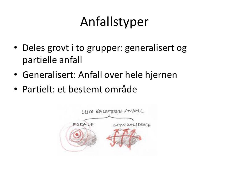 Anfallstyper Deles grovt i to grupper: generalisert og partielle anfall. Generalisert: Anfall over hele hjernen.